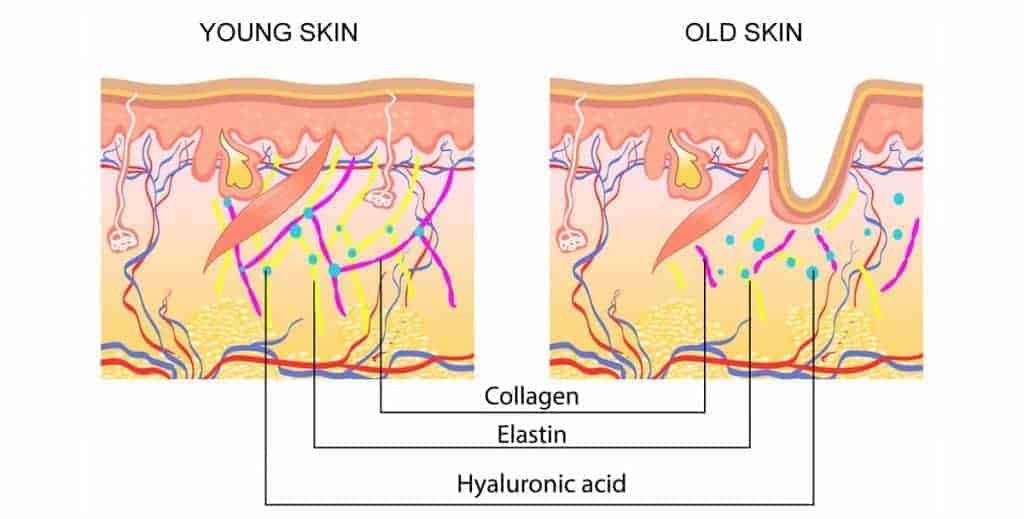 young-skin and old-skin